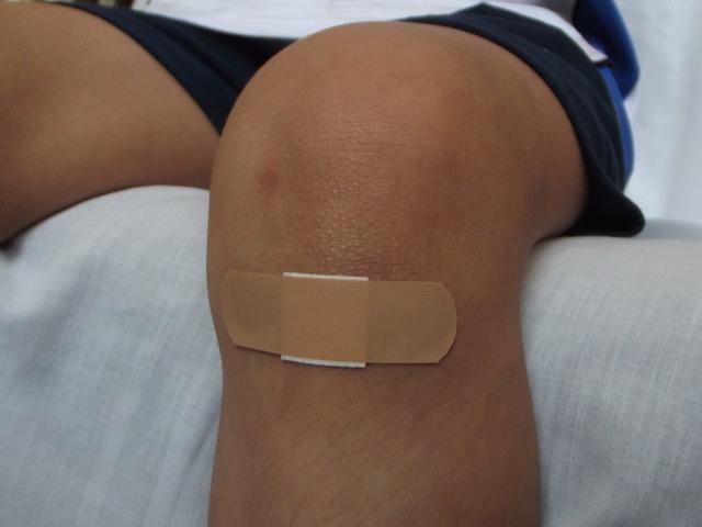 zalepené koleno